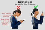 Text Neck Syndrome is a Real Threat to our Health